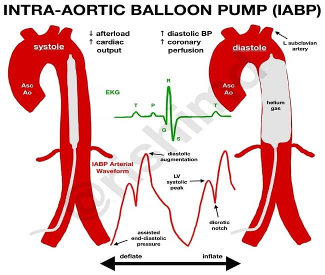 intra-aortic balloon pump working